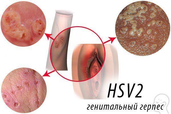 Вагинальный герпес - первые симптомы и его лечение