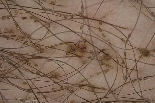 Лобковые вши - симптомы, лечение и профилактика