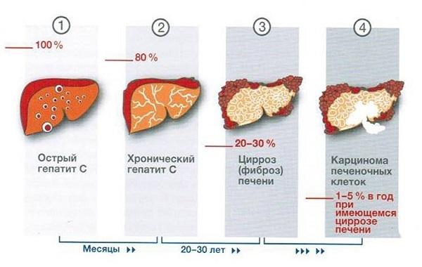 Хронический гепатит С, его симптомы и лечение