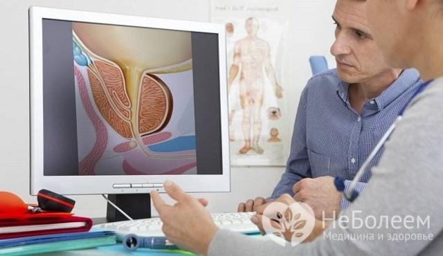 Молочница у мужчин - первые признаки, симптомы и лечение