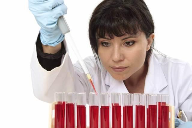 Анализ на хламидии – как сдавать, какие бывают способы, расшифровка результатов