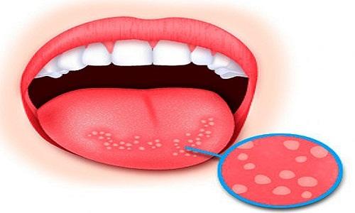 Герпес на языке: лечение, симптомы, профилактика