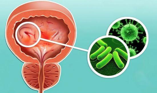 Кровь в моче при цистите - причины появления в конце мочеиспускания