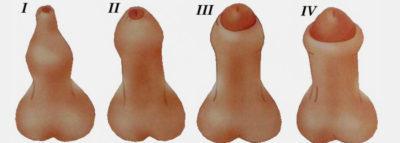 Фимоз у мужчин: частые причины, что делать, как лечить