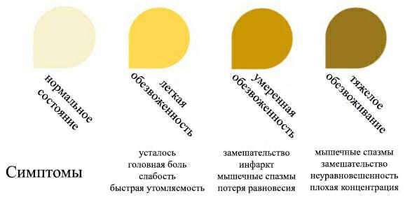 Желтая желтая моча - причины у женщин, мужчин и детей