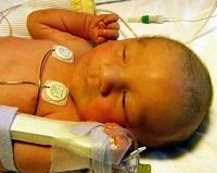 Гепатит у новорожденных: причины, последствия