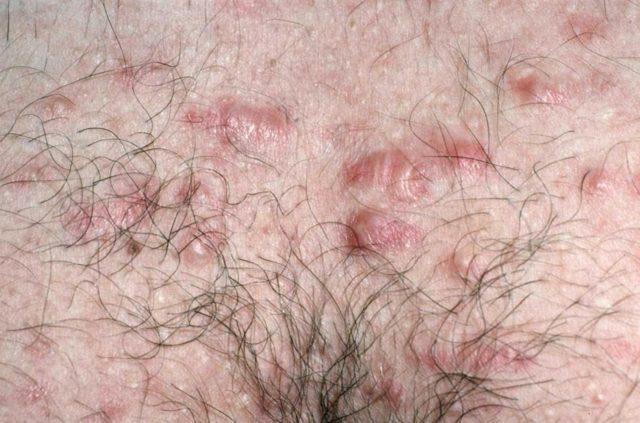 Генитальный герпес - симптомы и признаки заболевания