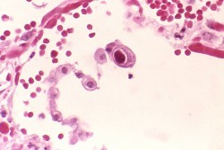 Цитомегаловирус - лечение лекарствами и народной медициной