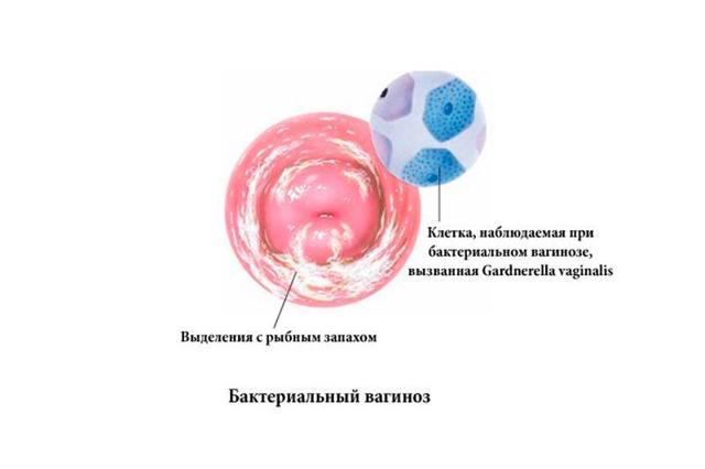 Бактериальный вагиноз - лечение, симптомы, профилактика и последствия