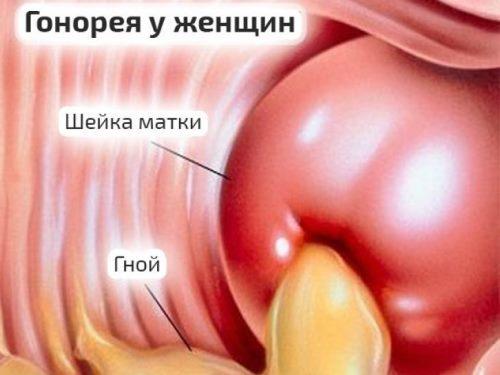 Передается ли уреаплазма через рот, оральный секс, поцелуй