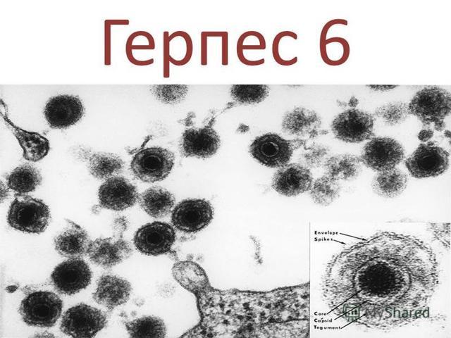 Герпес 6 типа у взрослых: симптомы, лечение возможные осложнения и последствия