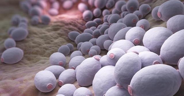 Генитальный кандидоз - симптомы и лечение молочницы на половых органах