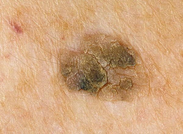 Папилломы на теле человека - причина появления и методы лечения