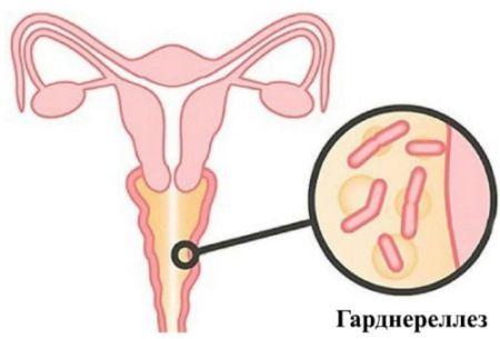Гарднерелла при беременности - влияние на плод и будущую мать