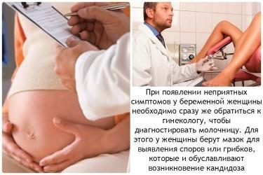 Молочница при беременности - причины, симптомы, опасность, лечение