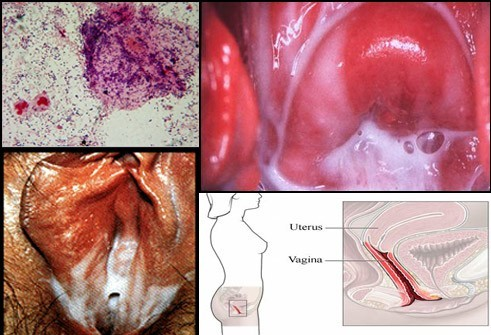 Бактериальный вагинит: симптомы, диагностика, лечение
