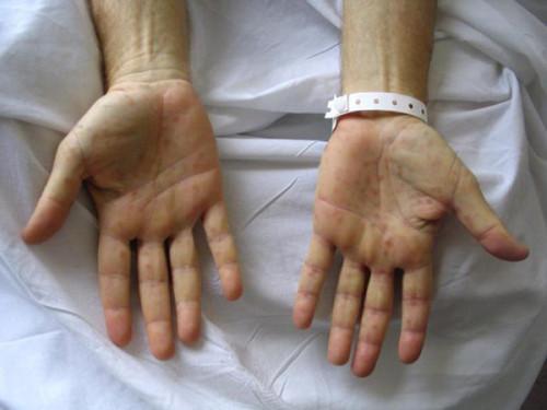 Профилактика сифилиса: экстренное предотвращение болезни