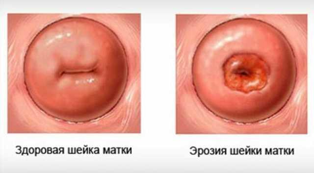 Водянистые выделения у женщин (как вода): случай нормы и патологии