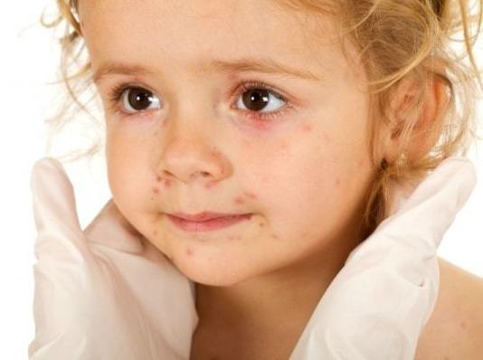 Герпес - причины возникновения высыпаний и их лечение