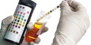 Суточная протеинурия - как собирать мочу и оценить результаты анализа?