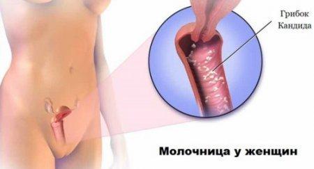 Бетадин от молочницы - особенности суппозиториев
