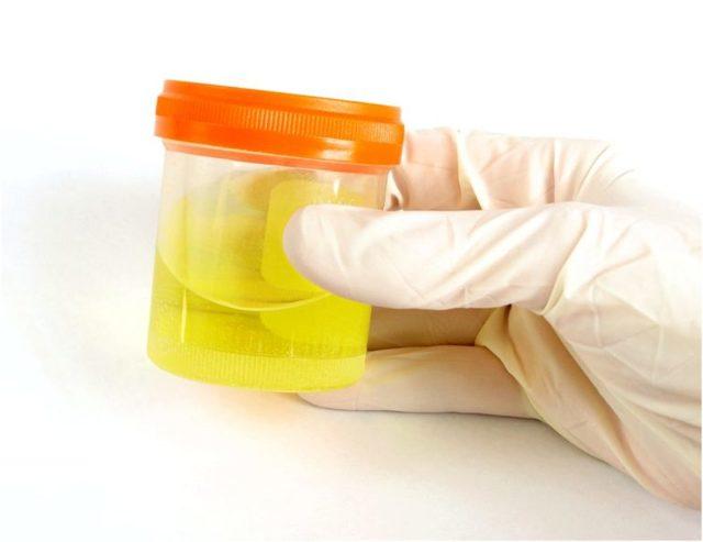 Анализ мочи при беременности - норма, расшифровка отклонений