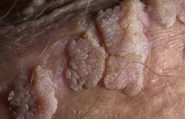 Вирус папилломы человека - как передается, как защититься