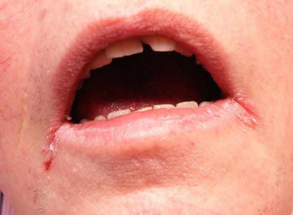 Сифилис на губах - причины, симптомы, лечение