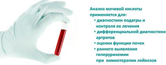 Мочевая кислота в крови повышена - причины отклонения от нормы