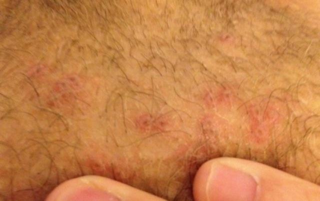 Как выглядит шанкр при сифилисе на губах и половых органах?
