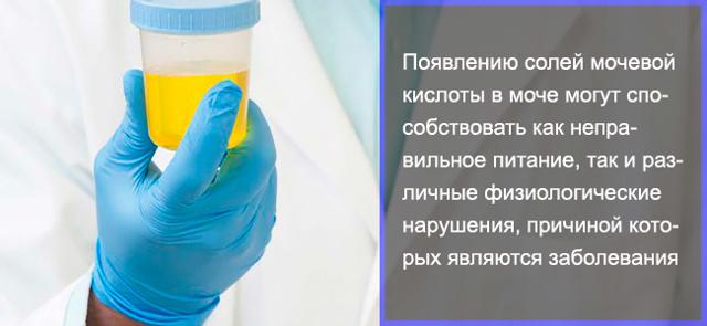 Соли в моче - причины повышения, методы лечения