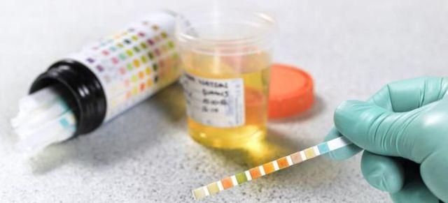 Кетоновые тела в моче - причины повышения у взрослых и методы лечения