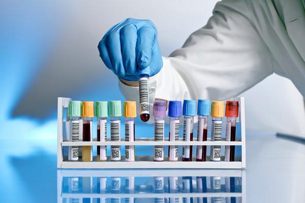 Анализ на сифилис - как называется и как проводится