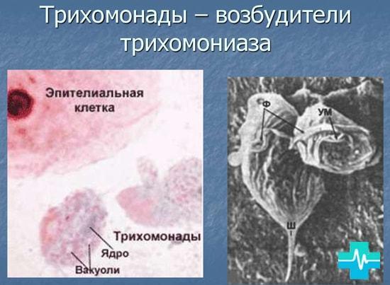 Трихомониаз: инкубационный период - через сколько проявляется трихомонада