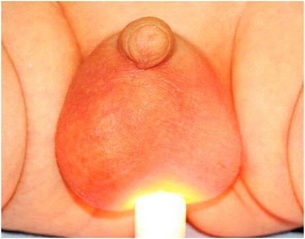 Водянка яичек у новорожденных мальчиков: причины, способы лечения у грудничка