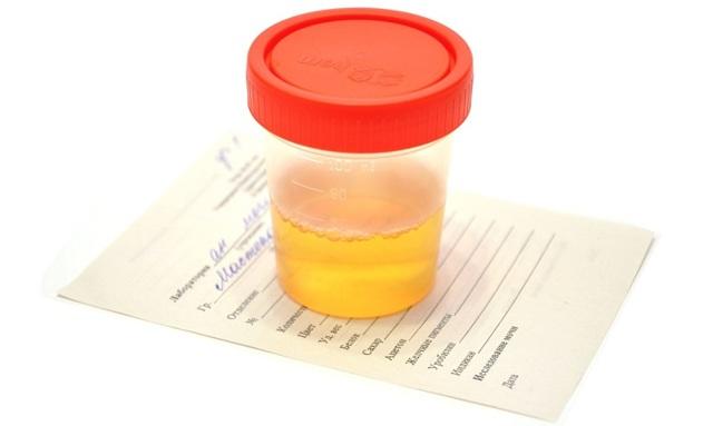 Лейкоциты и эритроциты в моче повышены - диагностика причин и варианты лечения