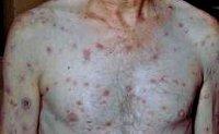 Вторичный сифилис: симптомы, лечение и прогноз