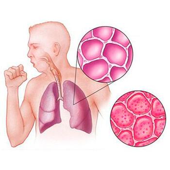 Хламидия пневмония (chlamydia pneumoniae) - симптомы, лечение у взрослых и детей
