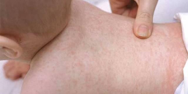 Герпес 6 типа у детей: особенности вируса, симптомы и лечение