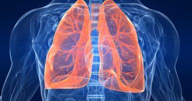 Мочевая кислота повышена - какие могут быть причины, как с этим бороться?