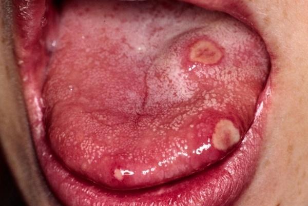 Стадии сифилиса: первичный, вторичный и третичный периоды заболевания