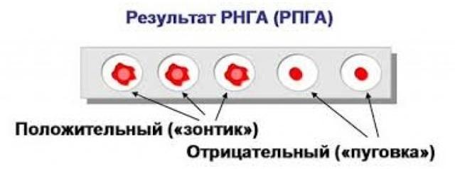 РМП на сифилис - как проводится и оценивается анализ?