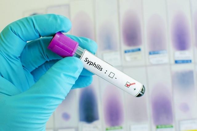 Ложноположительный анализ на сифилис: причины такого диагноза