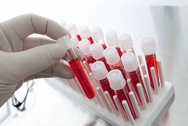 Анализ на цитомегаловирус - как сдавать, расшифровка результатов