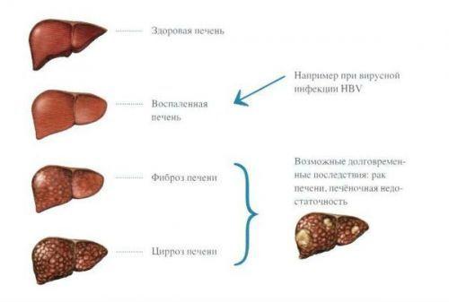 Гепатит С, генотип 1b: лечение и прогноз
