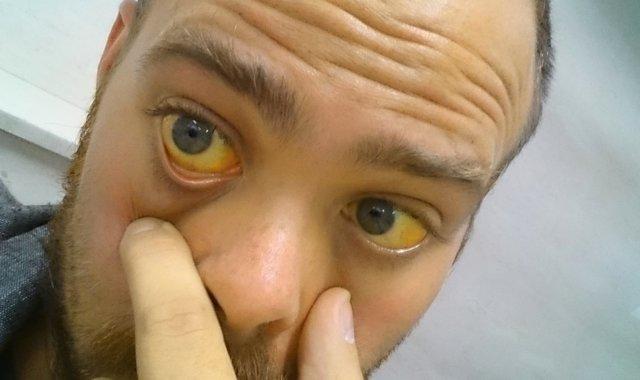 Свечи от простатита - обзор недорогих, с антибиотиком, от воспаления