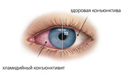 Респираторный хламидиоз (легочный) - симптомы и лечение