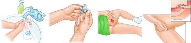 Свечи с прополисом от простатита: инструкция по применению, как можно сделать своими руками