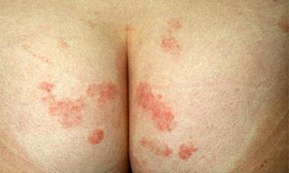 Герпес на ягодице - причины, проявления и лечение