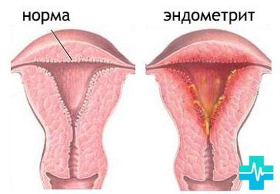 Кровянистые выделения - причины появления у женщин